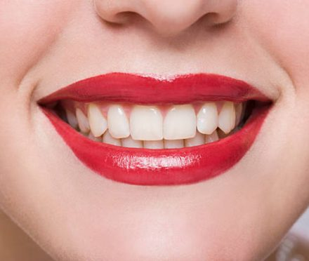 How to get beautiful White Teeth without any Side Effects!